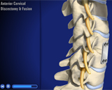 Anterior Cervical Discectomy with Fusion Animation