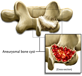 Aneurysmal Bone Cysts