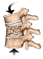 Flexion/Compression Fracture