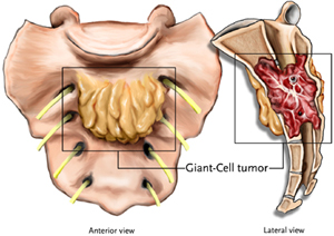 Giant Cell Tumors
