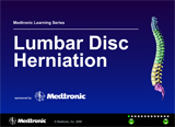 Herniated Disc Animation