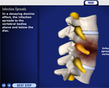 Spinal Infection Animation