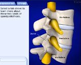 Spondylolisthesis Animation