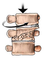 Compression/Torsion/Translational Fractures